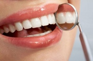 Picture of a oral health